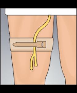 "Urocare 6311 - Foley Cath Fabric Strap, Catheter Holder Arm 14"", ea"