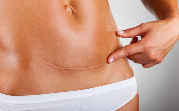 Get Help with Recovery after Abdominal Surgery